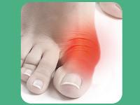 VALGUS - Лечение Косточки Большого Пальца Стопы - Малаховка